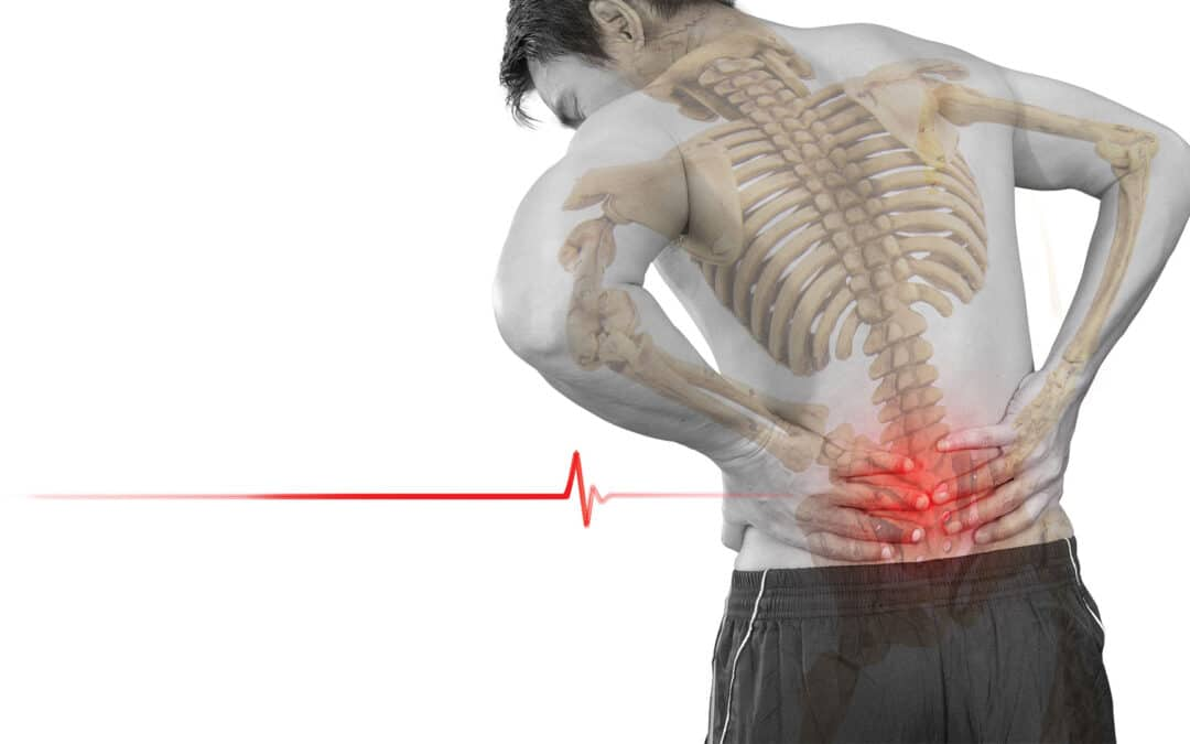 Chiropractic Therapy for Disc Disorders and Spinal Decompression
